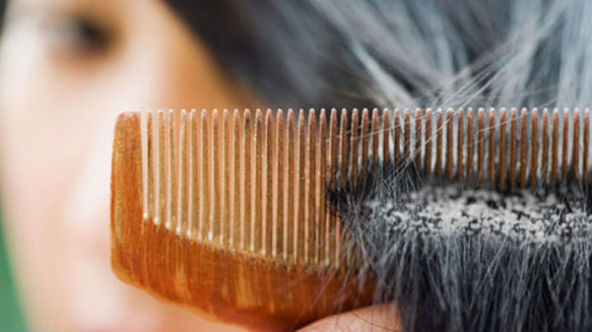 How To Safely Remove Product Build Up From Hair
