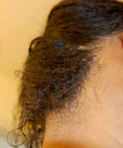 10 Ways You're Causing Nape Breakage
