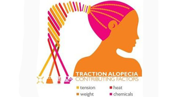 How To Cure Traction Alopecia Naturally
